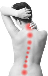 Schmerzmuster entlang der Wirbelsäule