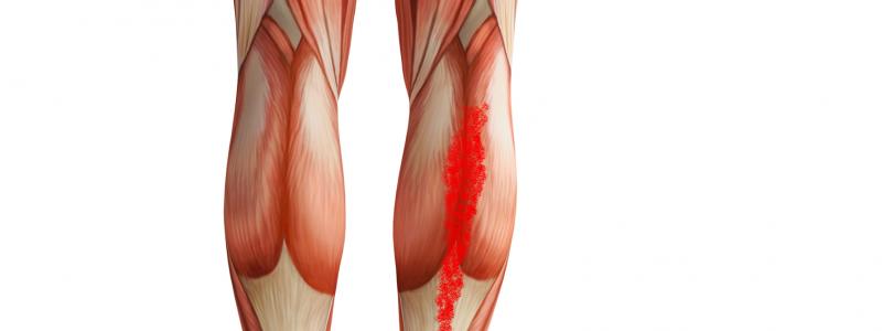 Triggerpunkte Schmerzmuster des M. soleus
